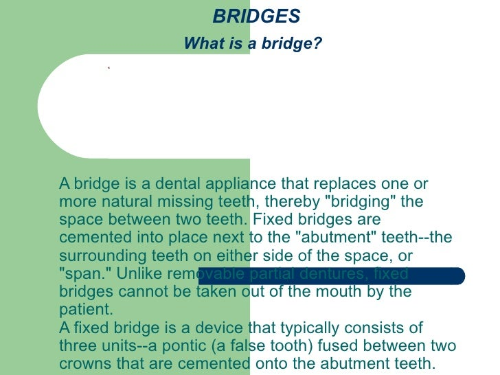 """BRIDGES What is a bridge?   A bridge is a dental appliance that replaces one or more natural missing teeth, thereby """"..."""