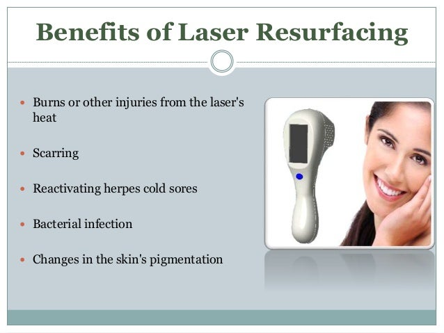 Brief Discussion Of Facial Laser Treatment