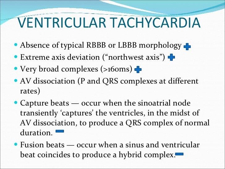 ventricular tachycardia essay