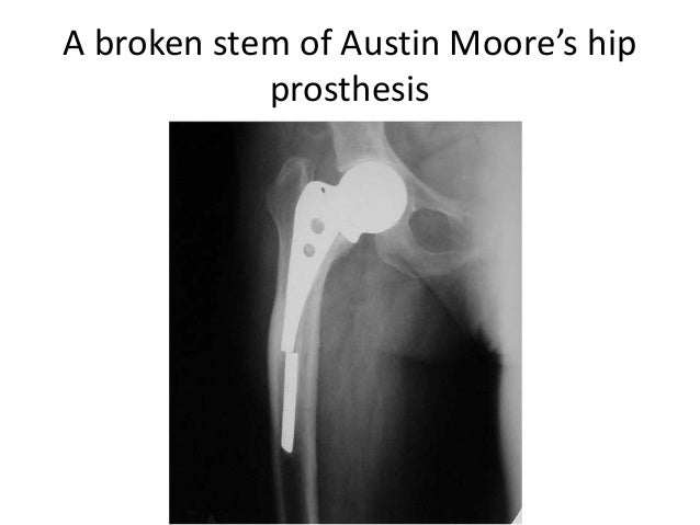 Broken Austin Moore Prosthesis Fatigue Or Failure