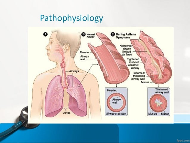 asthma bronchioles images reverse search