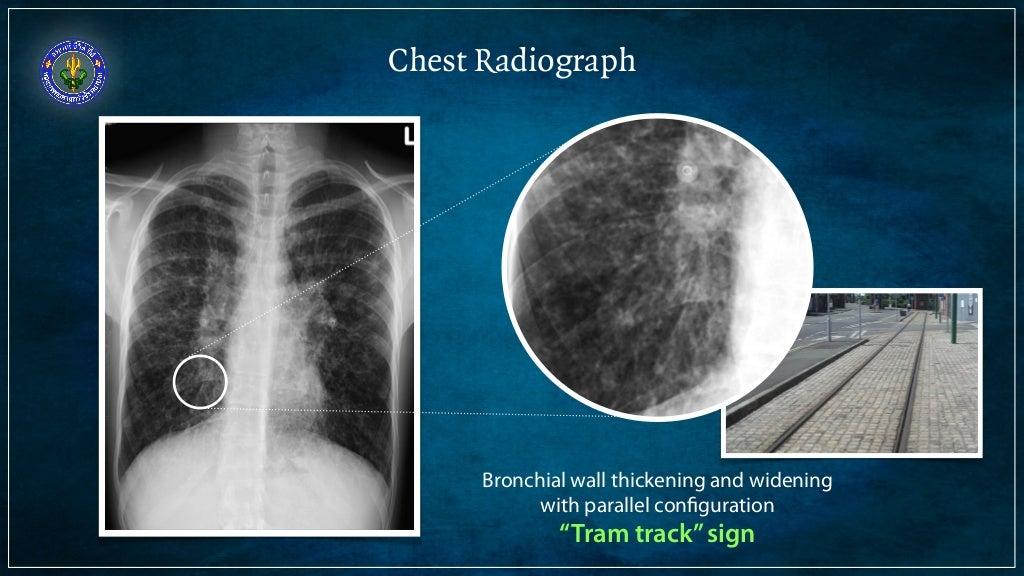 Signet Ring X Ray
