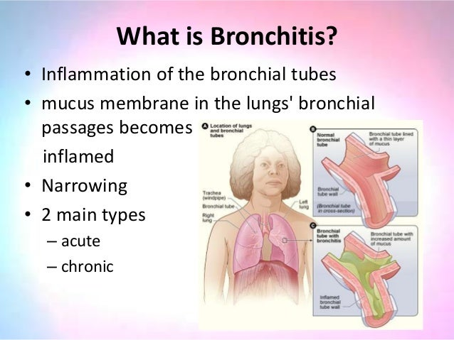 a description of bronchitis when the line the bronchial tubes becomes inflamed