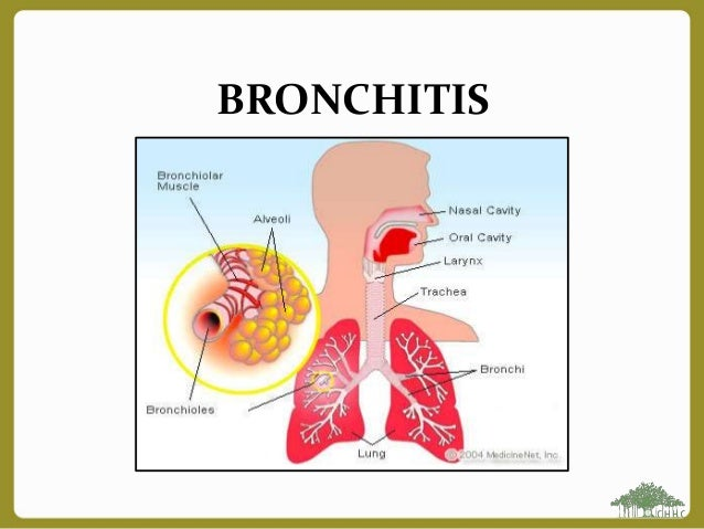 how to get over the wheezing of bronchitis