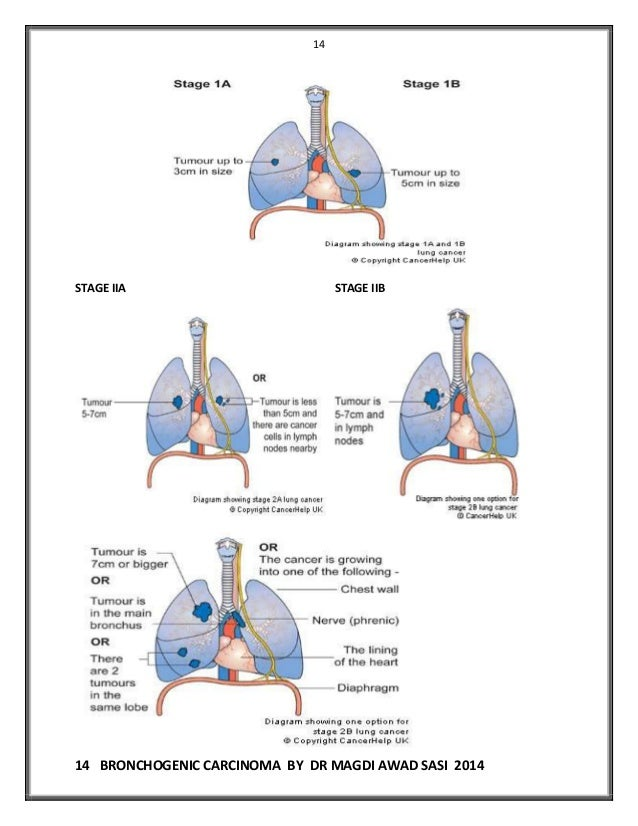 Bronchogenic Carcinoma Dr Magdi Sasi
