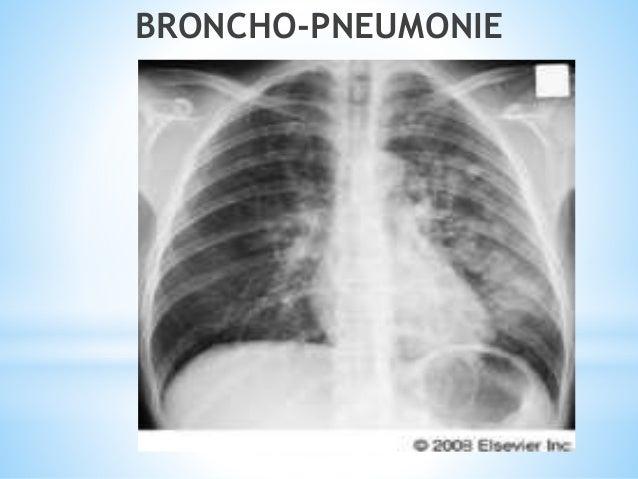 Bronchopneumopathies aigues bacteriennes