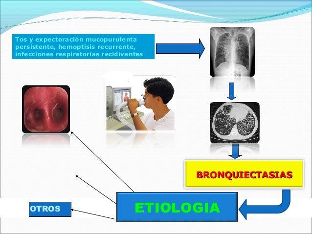 Si no hay sospecha clínica clara,descartar:•Inmunodeficiencias con déficit deproducción de anticuerpos,•Reflujo gastroesof...