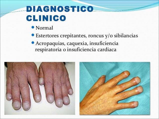 DIAGNOSTICOCLINICONormalEstertores crepitantes, roncus y/o sibilanciasAcropaquias, caquexia, insuficienciarespiratoria ...
