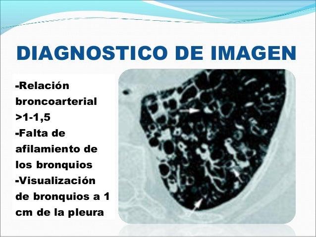 DIAGNOSTICO DE IMAGEN-Relaciónbroncoarterial>1-1,5-Falta deafilamiento delos bronquios-Visualizaciónde bronquios a 1cm de ...