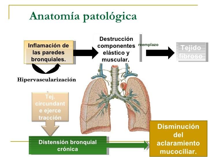 Bronquiectasias Tbc Y Ca Pulmonar Tucienciamedic FMH UNPRG