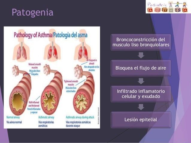 Como distinguir la eccema de la dermatitis alérgica
