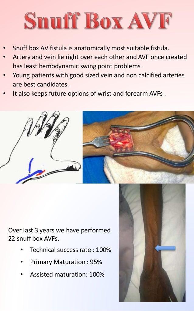 Arteriovenous fistula - www.avfistulaexpert.com