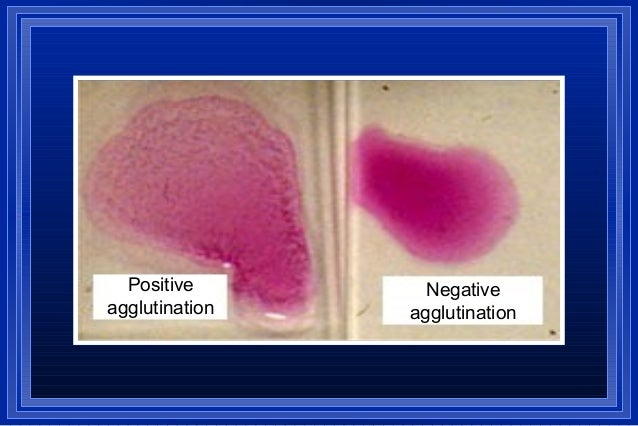 Positive agglutination test