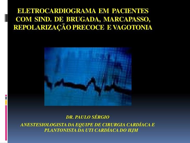 ELETROCARDIOGRAMA  EM  PACIENTES COM  SIND.  DE  BRUGADA,  MARCAPASSO,    REPOLARIZAÇÃO PRECOCE  E VAGOTONIA<br />DR. PAUL...
