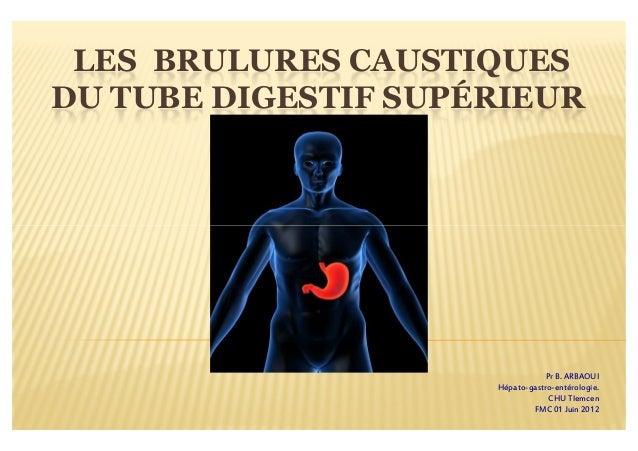 LES BRULURES CAUSTIQUESDU TUBE DIGESTIF SUPÉRIEUR                                 Pr B. ARBAOUI                     Hépato...