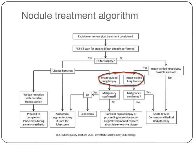 British Thoracic Society Guidelines On Lung Nodules Vama2015