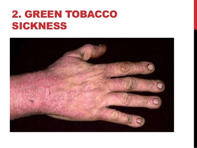 Tobacco Farming In Indonesia