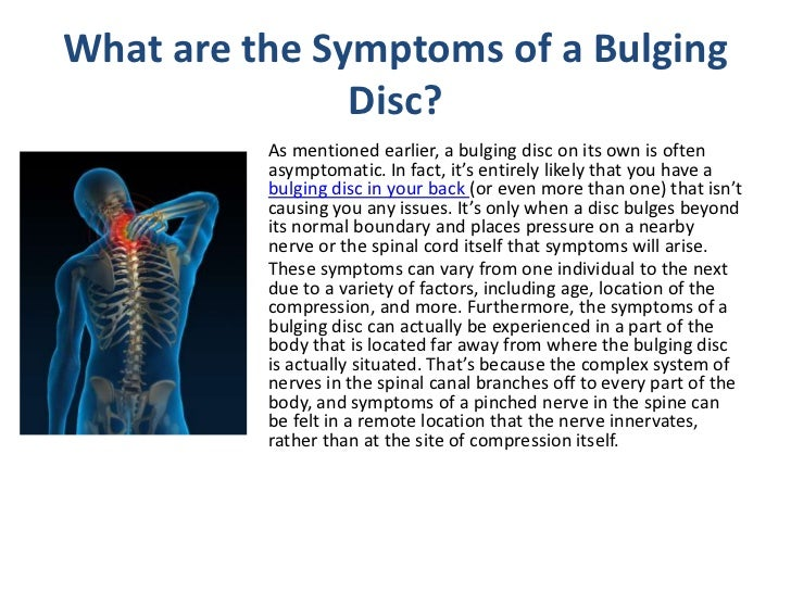 managing symptoms from a bulging disc in your back, Cephalic Vein