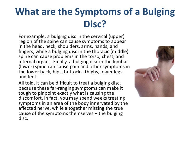 Managing Symptoms from a Bulging Disc in Your Back