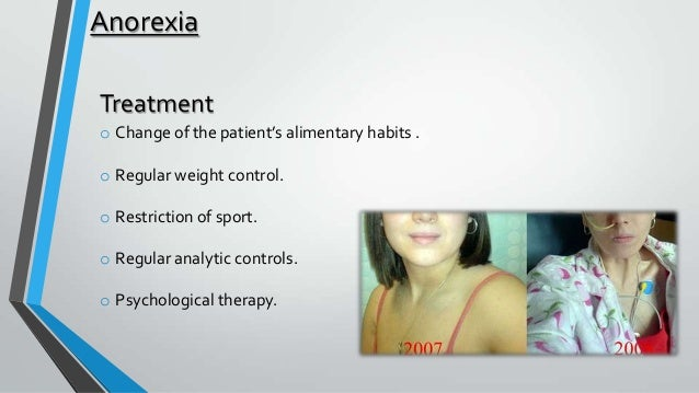 what are the symptoms of anorexia Anorexia (an-o-rek-see-uh) nervosa — often simply called anorexia — is an eating disorder characterized by an abnormally low body weight, an intense fear of gaining weight and a distorted perception of weight people with anorexia place a high value on controlling their weight and shape, using .