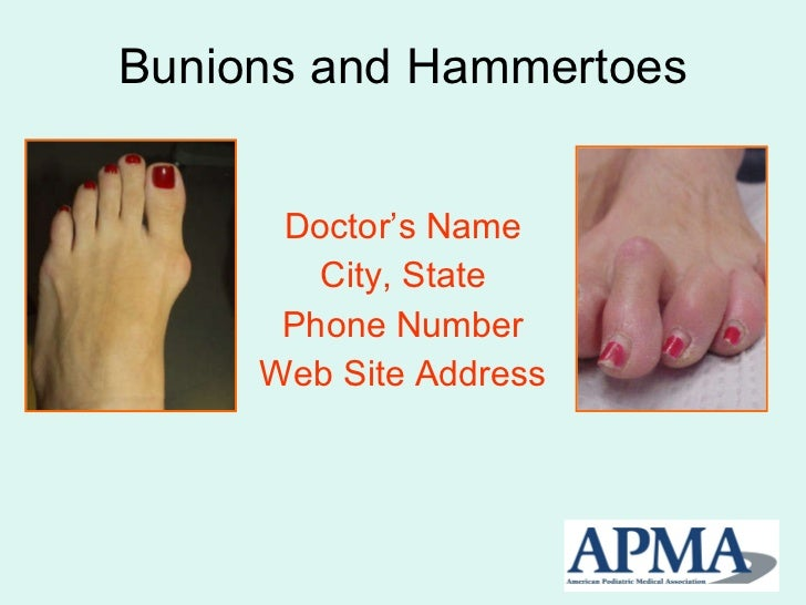 Bunions and Hammertoes Doctor's Name City, State Phone Number Web Site Address