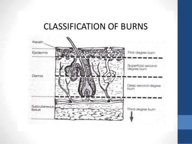 Ensure rescue saftey. Stop the burning process. How????
