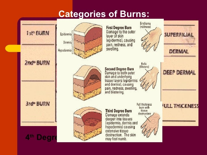 the three categories of burn Thermal burns can be roughly broken down into three categories: first-degree,  second-degree, and third-degree burns first-degree burns are typically caused.