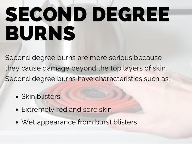 Burn Injury: Burn Types, Treatments, and Causes