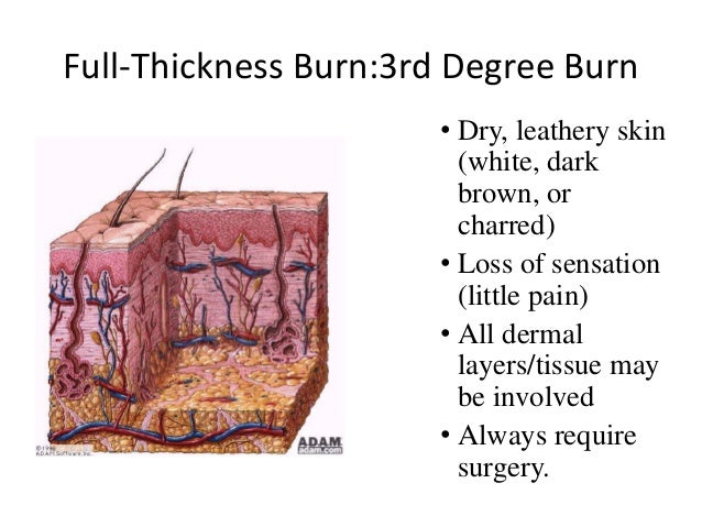 fourth degree burn• involves structures beneath the skin- muscle,bone