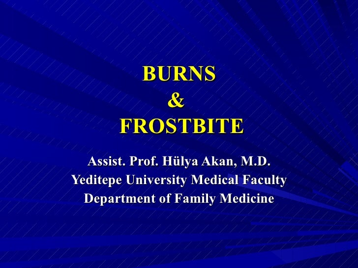 BURNS           &       FROSTBITE  Assist. Prof. Hülya Akan, M.D.Yeditepe University Medical Faculty  Department of Family...