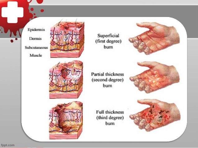 Burns first aid Slide 3