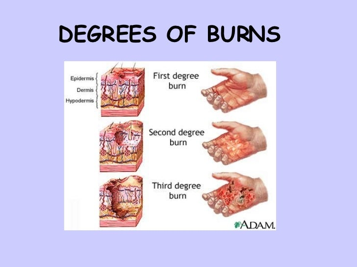burn and degree burns A burn is an injury that is caused by heat, radiation, chemicals or electricity  serious burns can be fatal, especially 3rd degree burns or higher burns that  involve.