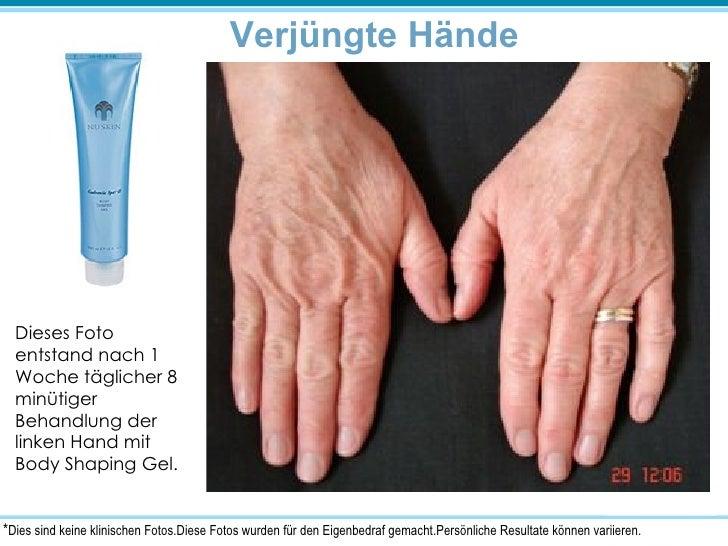Verjüngte Hände Dieses Foto entstand nach 1 Woche täglicher 8 minütiger Behandlung der linken Hand mit Body Shaping Gel. *...