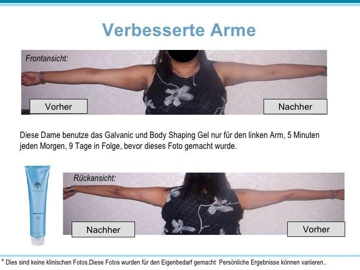 Verbesserte Arme Frontansicht: Rückansicht: Diese Dame benutze das Galvanic und Body Shaping Gel nur für den linken Arm, 5...