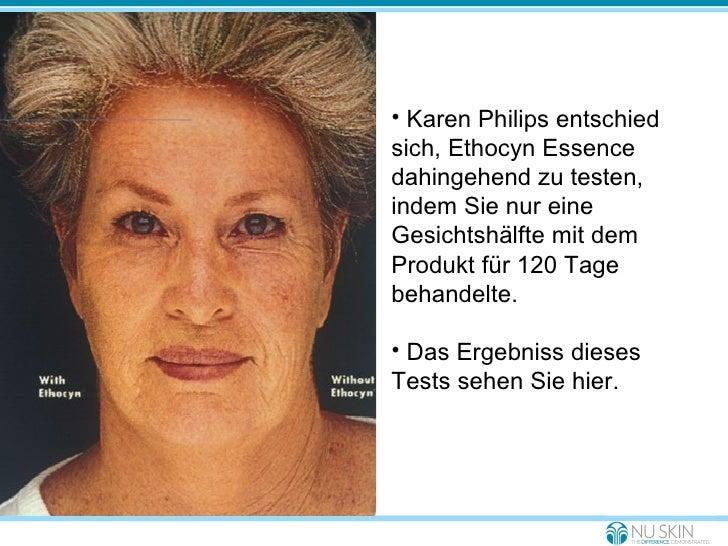 With Ethocyn Without Ethocyn <ul><li>Karen Philips entschied sich, Ethocyn Essence dahingehend zu testen, indem Sie nur ei...