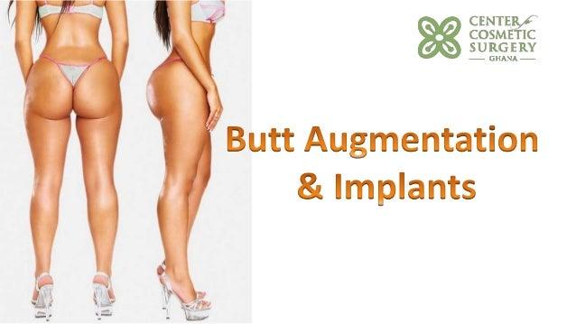 Get Butt Inplants 92