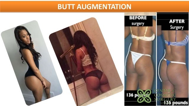 Cheek Implants Sydney  Cheek Augmentation Surgery  Dr Nettle