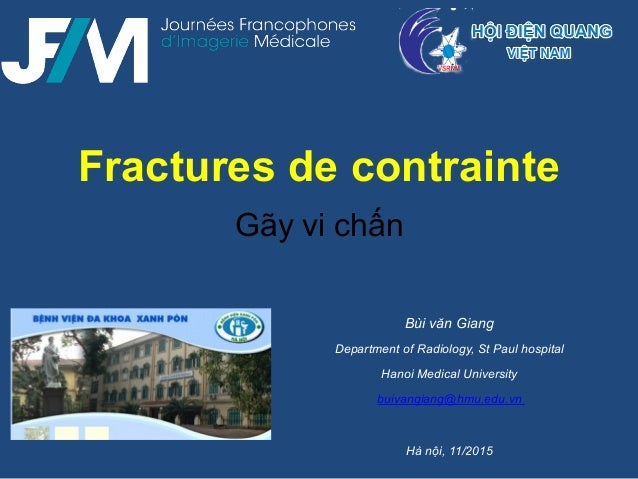 Fractures de contrainte Gãy vi chấn Bùi văn Giang Department of Radiology, St Paul hospital Hanoi Medical University buiva...