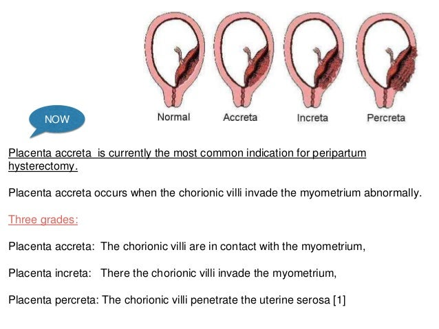 Image result for placenta accreta