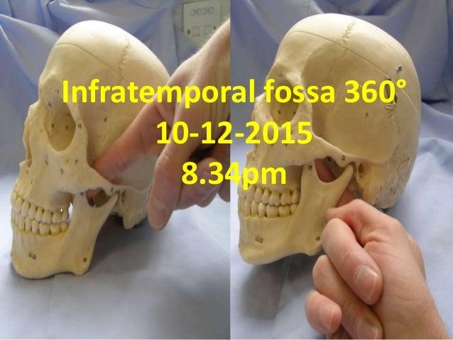 Infratemporal fossa 360° 10-12-2015 8.34pm