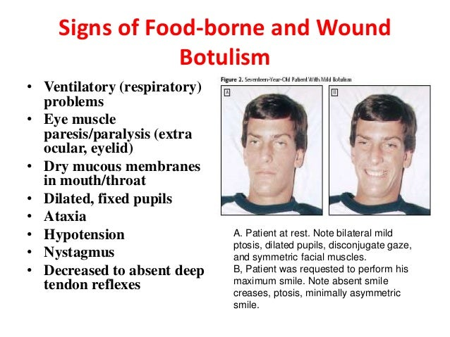 causes of food borne botulism One of the most common causes of foodborne botulism is improperly home-canned food, especially low-acid foods such as vegetables and meats only a pressure cooker/canner allows water to reach 240 to 250 °f, a temperature that can kill the spores.