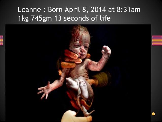 Leanne : Born April 8, 2014 at 8:31am 1kg 745gm 13 seconds of life