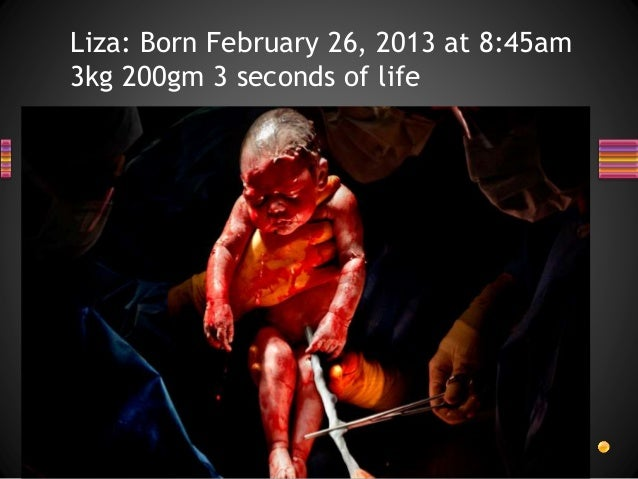 Liza: Born February 26, 2013 at 8:45am 3kg 200gm 3 seconds of life