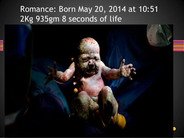 Romance: Born May 20, 2014 at 10:51 2Kg 935gm 8 seconds of life