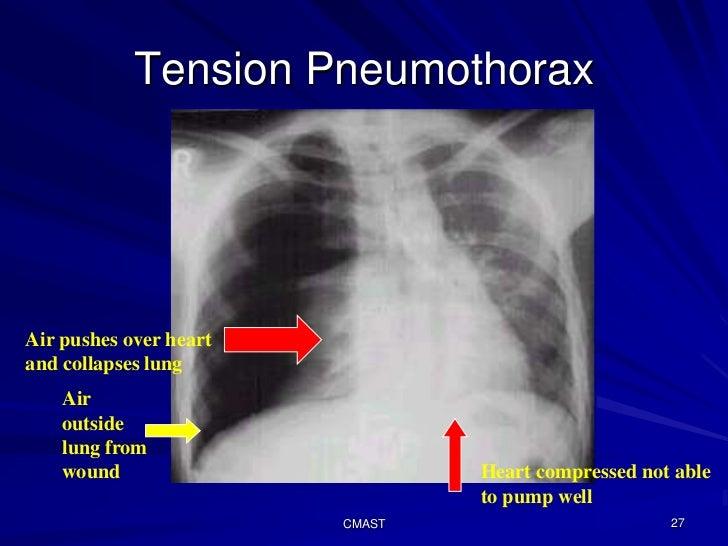 C191 w4tc cmast chest trauma management