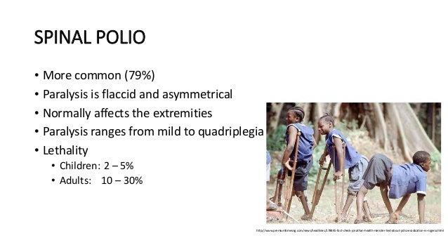 polio affect adults