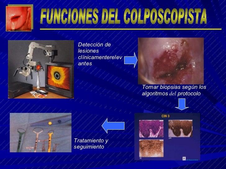 Tomar biopsias según los algoritmos  del  protocolo Detección de lesiones clínicamenterelevantes Tratamiento y seguimiento...