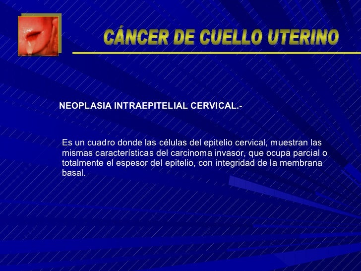 Es un cuadro donde las células del epitelio cervical, muestran las mismas características del carcinoma invasor, que ocupa...