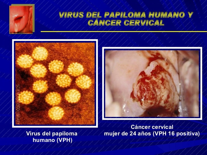 Virus del papiloma  humano (VPH) Cáncer cervical mujer de 24 años (VPH 16 positiva) VIRUS DEL PAPILOMA HUMANO Y CÁNCER CER...