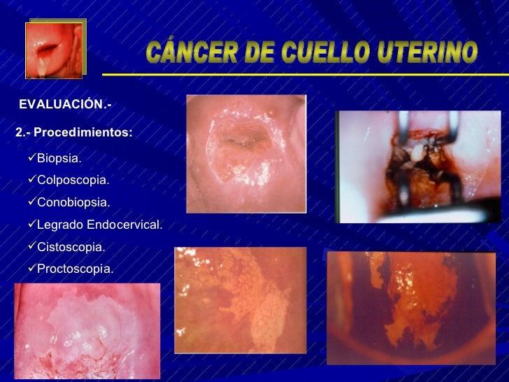 <ul><li>Biopsia. </li></ul><ul><li>Colposcopia. </li></ul><ul><li>Conobiopsia. </li></ul><ul><li>Legrado Endocervical. </l...